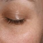 Dark Pigmentation on Eyes