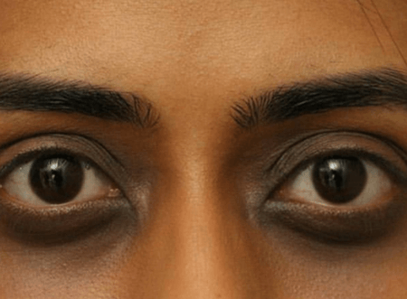 Ethnicicty with Pigmentation around the Eyes